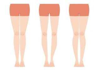 """""""O脚""""は、変形性膝関節症の予備軍ともいわれる脚のトラブルで、体のゆがみや脚の変形の原因となります。まずは鏡の前に立ち、足のかかとをそろえて直立し、自分がO脚かをセルフチェックしてみましょう。両足のひざ同士が付かず、すきまが開いていた人はO脚です。矯正エクササイズをぜひやってみてください。"""