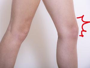 ひざの痛みの救世主 「PRP血小板療法」の即効性と懸念点