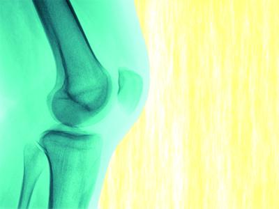 ひざの痛みの原因は【軟骨の破壊】にあった!