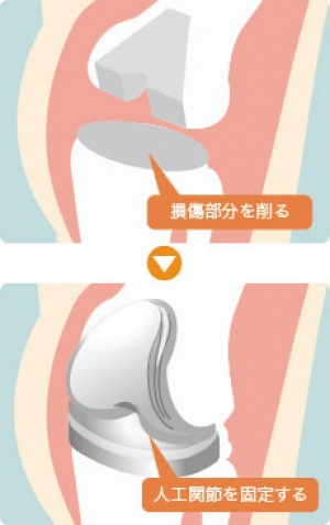 人工関節 ひざ