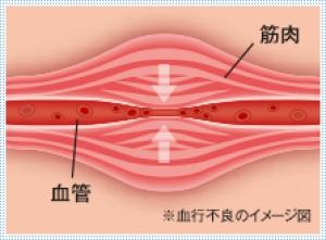 血行不良 筋肉 血管