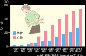 女性ホルモン、骨粗鬆症、エストロゲン