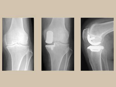 年間8万人がひざの痛みを原因に人工関節施術?!