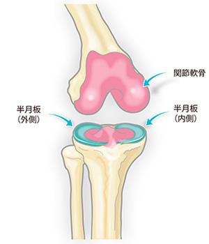 ひざ関節の半月板 画像